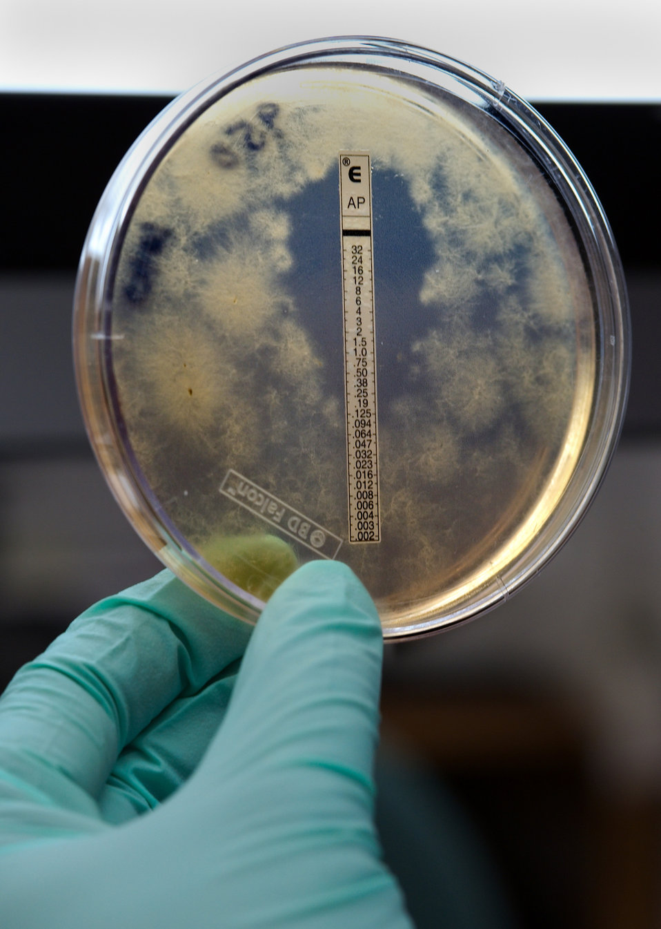 A slightly closer view than PHIL 15147, this photograph was captured during the Centers for Disease Control and Prevention's (CDC) multistate meningitis outbreak investigation. This culture plate revealed the results of a susceptibility test to the antifungal drug amphotericin B. The drug inhibited growth of the fungal organism Exserohilum in the clear area where the amphotericin B had diffused into the medium, while the Exserohilum organisms were growing elsewhere on the plate, where the drug had not diffused into the medium.